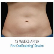 Fat Freezing Treatment in Miami