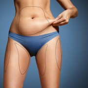 Non Invasive Fat Removal