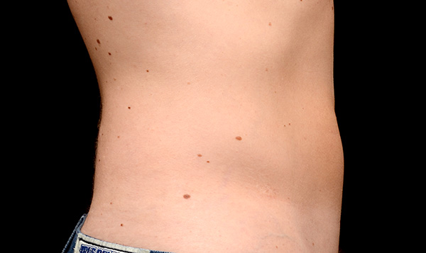 coolsculpting-man-after , Coolsculpting Miami