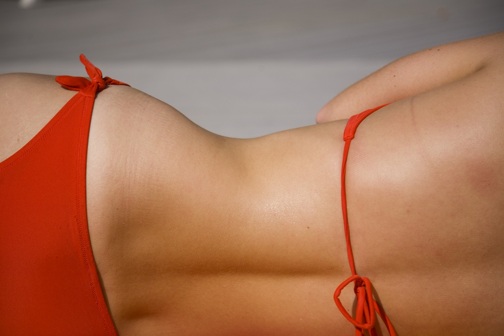CoolSculpting for Celebrities